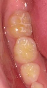 シーラントをした歯